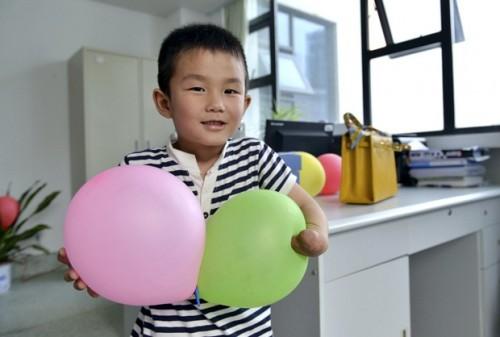 Xiaocheng, 6 anos, perdeu parte da mão esquerda em um acidente de carro quando tinha 4 anos. (Foto: Reprodução)