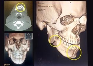 Clube liberou as imagens dos exames comprovando que mandíbula de Bolaños foi quebrada em dois lugares. (Foto: Reprodução)