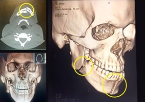 Exames mostram os locais quebrados na face. (Foto: Reprodução)