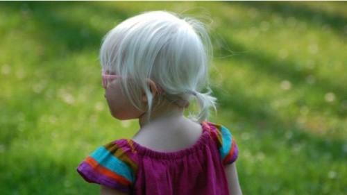"""Sadie é uma menina normal, que convive con naturalidade com sua imagem """"diferente"""". (Crédito: Reprodução)"""