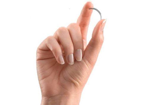 O produto, composto de materiais que incluem fibras de poliéster, níquel e titânio, é livre de hormônios e é colocado permanentemente nas trompas da mulher (Foto: Reprodução)