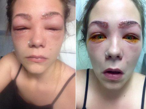 Tylah e a forte reação ao cosmético (Foto: Reprodução/Facebook)