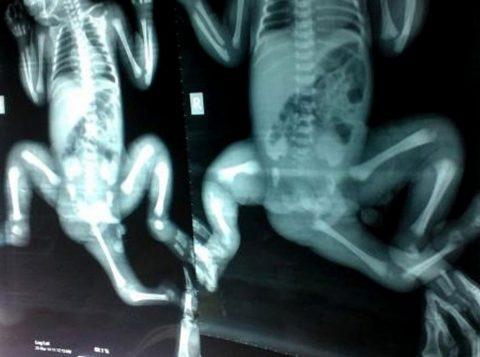 Raio-X feito antes da cirurgia mostra terceira perna da menina. (Foto: AFP)