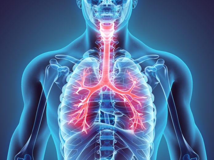 Resultado de imagem para doença respiratória