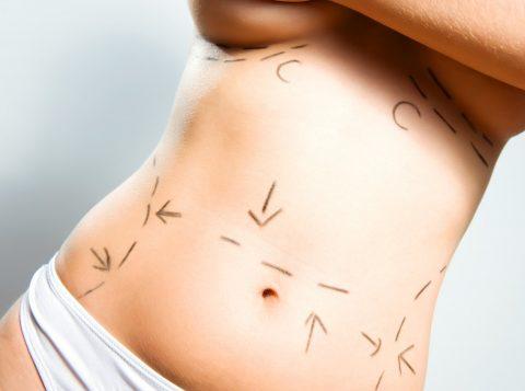 Dormir mal, comer errado, estresse e exercícios físicos podem prejudicar a cicatrização após a cirurgia plástica