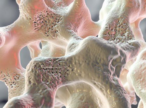 Criado por brasileiros, um novo tipo de teste de sangue diz se o câncer começou a se espalhar pelos ossos