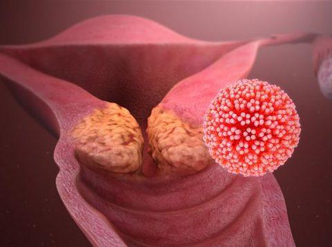 Entenda a relação entre o câncer de colo do útero e o HPV